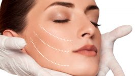 Facelifts and Neck Lifts