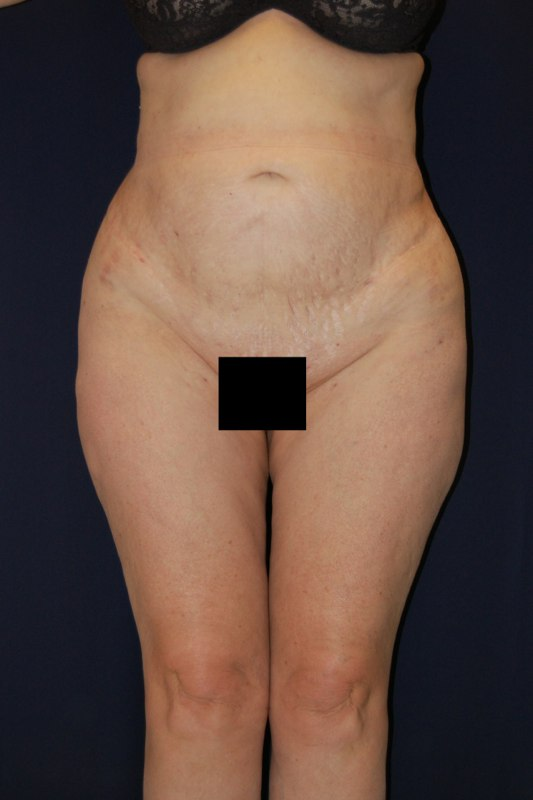 After liposuction procedures