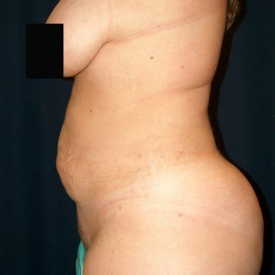 After fat removal (liposuction procedures)