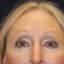 Browlift After