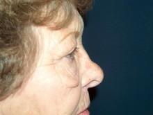 Eyelid Surgery Side Before