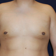 Male Breasts After