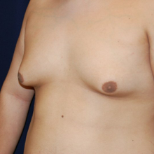 Male Breasts Before