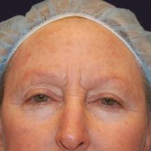 Skin Rejuvenation Before