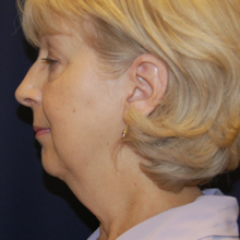 Chin Implant Before
