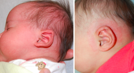 EarWell Before and After