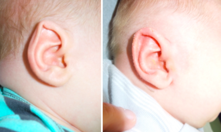 EarWell Treatment Before and After