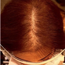 Female patient treated for thinning hair