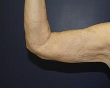 J-Plasma Arm After