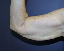 J-Plasma Arm Before
